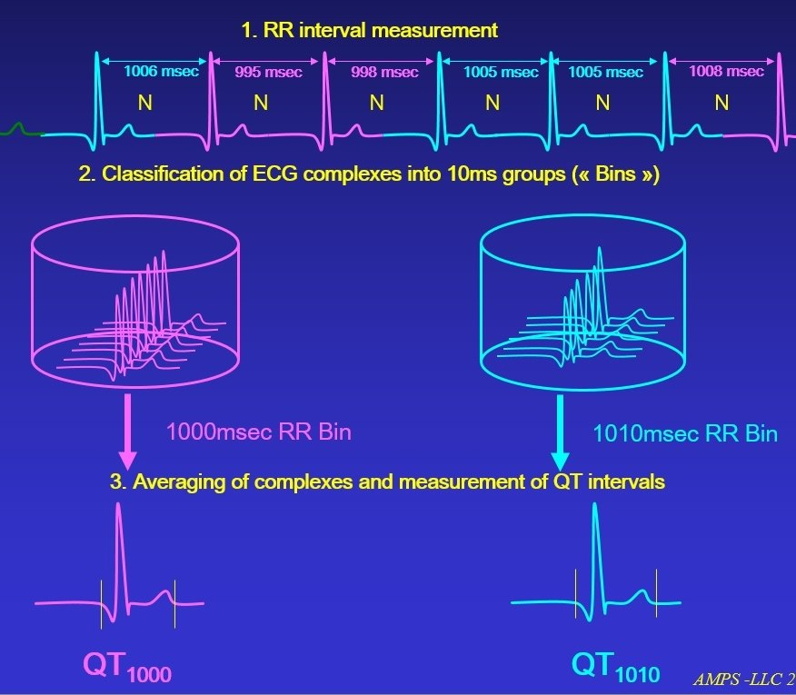 Software Tools for Continuous ECG Recordings (Holter)