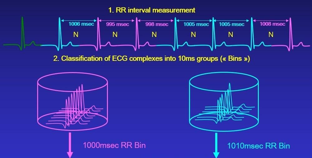 Continuous ECG Recordings