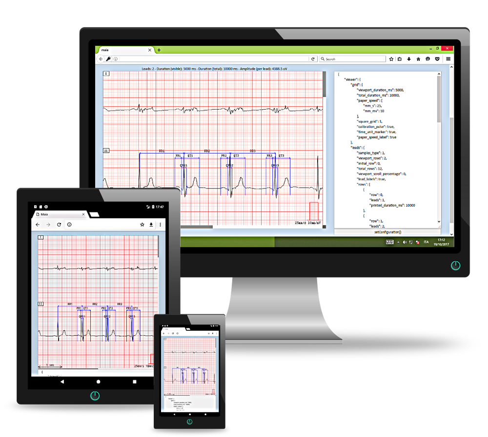 AMPS LLC announces the release of ViewECGWeb, its new online Viewer tool for ECG traces